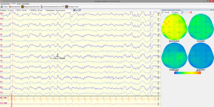 Обучение ЭЭГ и нейробиоуправлению